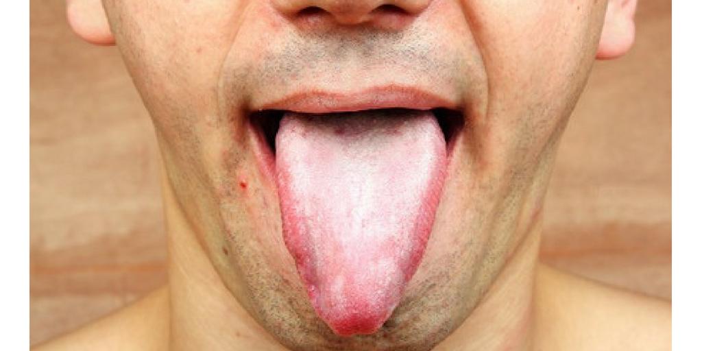 zapalenie jamy ustnej od penisa